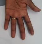artificial-silicone-limb-suppliers