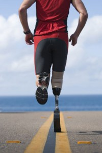 artificial leg supplier