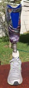 artificial-limb-supplier