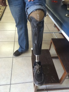 artificial-limb-suppliers-in-cape-town