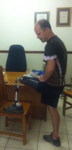 artificial-limb-suppliers-south-africa