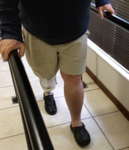 artificial-limbs-supplier-in-cape-town