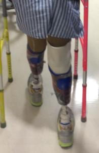 artificial-limbs-supplier