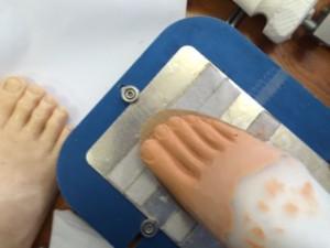 artificial-limb-services
